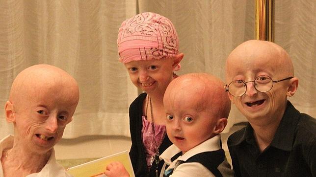 20120520061952-progeria-644x362.jpg
